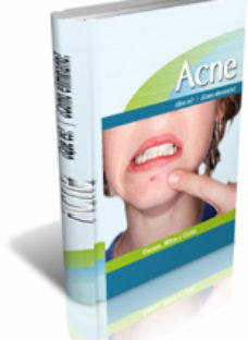acne - box - saludfisicaymental.com